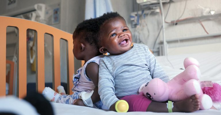 Vatican-Owned Hospital Makes History by Separating Conjoined Twins from Africa